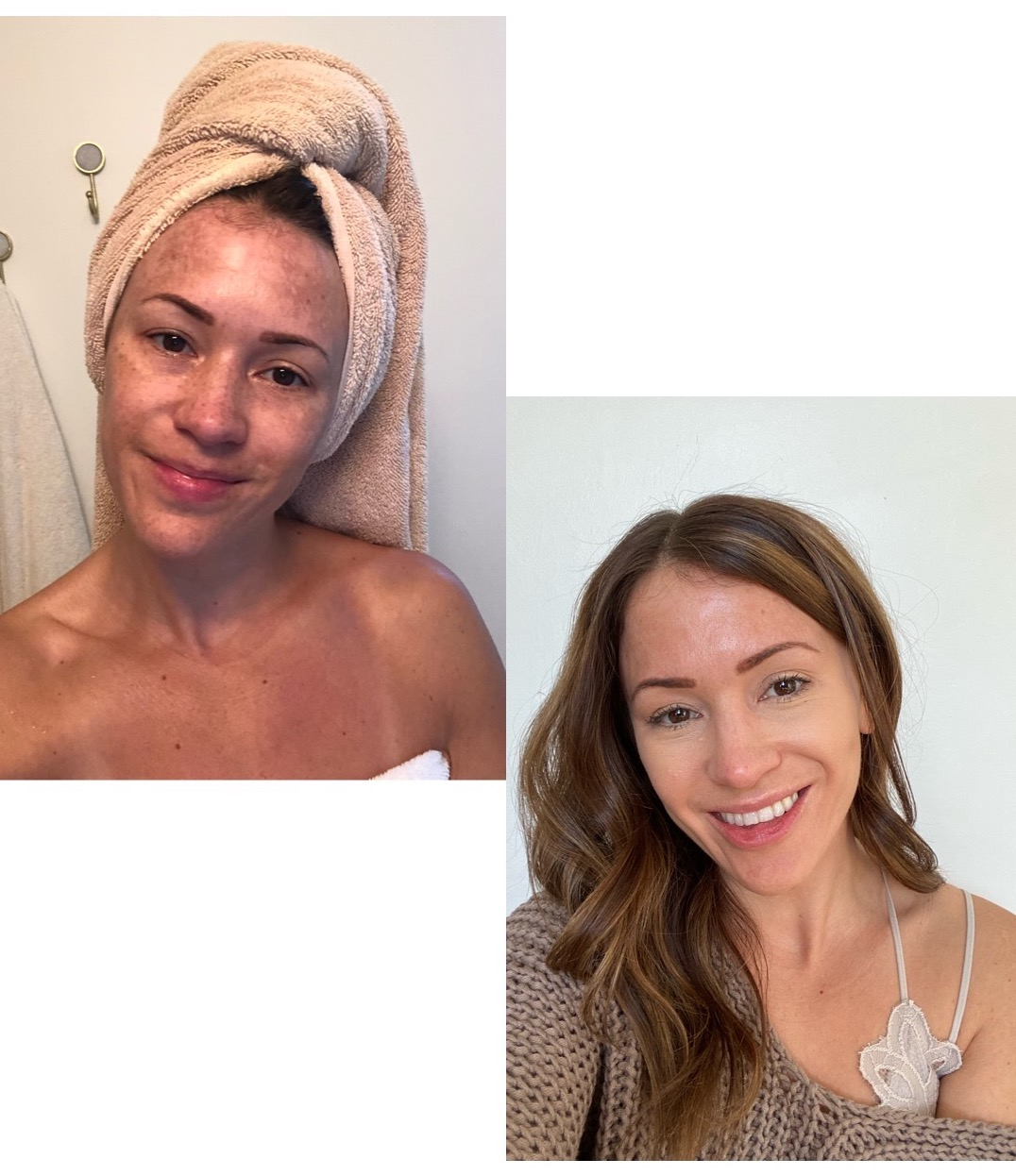 how-i-got-rid-of-melasma