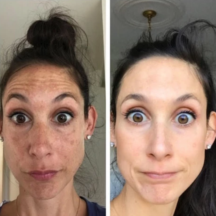 melasma-treatment-before-after